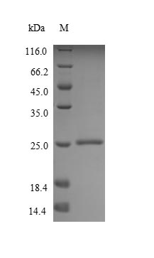 SDS-PAGE- Recombinant protein Human MUC2
