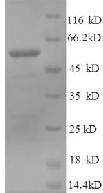 SDS-PAGE- Recombinant protein Human MUSK