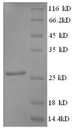 SDS-PAGE- Recombinant protein Rat Mybpc3