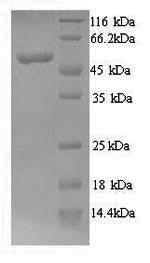 SDS-PAGE- Recombinant protein Human MYCN