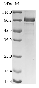 SDS-PAGE- Recombinant protein Human NCL