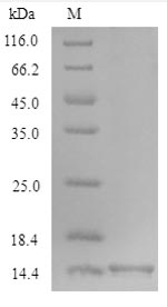 SDS-PAGE- Recombinant protein Mouse Ocm