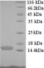 SDS-PAGE- Recombinant protein Human PCBD1
