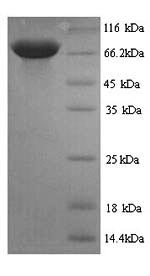 SDS-PAGE- Recombinant protein Rat Pklr