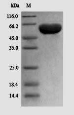 SDS-PAGE- Recombinant protein Human PPARG