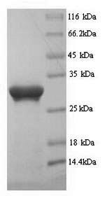 SDS-PAGE- Recombinant protein Human PROM1