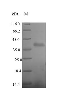 SDS-PAGE- Recombinant protein Human PTPRB