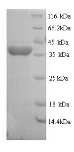 SDS-PAGE- Recombinant protein Rat Rgn