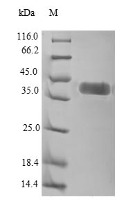 SDS-PAGE- Recombinant protein Human ROR1