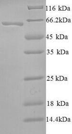 SDS-PAGE- Recombinant protein Human SMARCA2