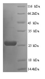 SDS-PAGE- Recombinant protein Rat Socs3