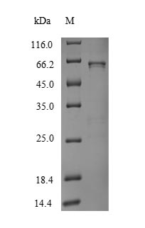 SDS-PAGE- Recombinant protein Human UGT1A1