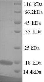 SDS-PAGE- Recombinant protein Toxoplasma PRF