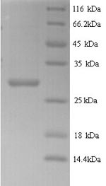 SDS-PAGE- Recombinant protein Arabidopsis LCR83