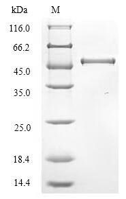 SDS-PAGE- Recombinant protein Bovine HE