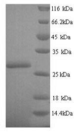 SDS-PAGE- Recombinant protein Escherichia nfsA