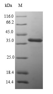 SDS-PAGE- Recombinant protein Salmonella mglB