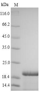 SDS-PAGE- Recombinant protein Hepatitis S