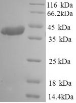SDS-PAGE- Recombinant protein Human S
