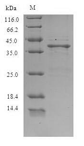 SDS-PAGE - Recombinant Lithobates catesbeiana Saxiphilin