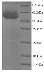 SDS-PAGE- Recombinant protein Shigella ipaH9.8
