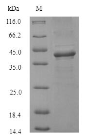 SDS-PAGE- Recombinant protein Staphylococcus clfA