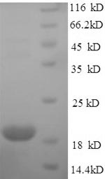 SDS-PAGE- Recombinant protein Human ILDR2