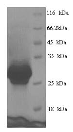 SDS-PAGE- Recombinant protein Human CEMP1