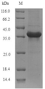SDS-PAGE- Recombinant protein Mouse Abhd11