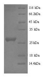 SDS-PAGE- Recombinant protein Rabbit IL6