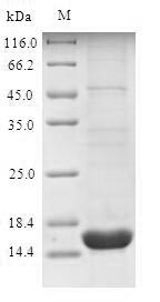 SDS-PAGE- Recombinant protein Human SLC34A2