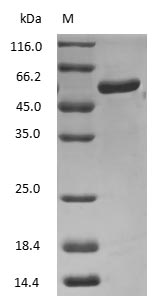 SDS-PAGE - Human Prealbumin protein