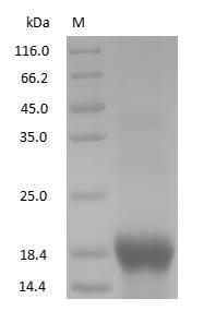 SDS-PAGE - Human Myoglobin protein